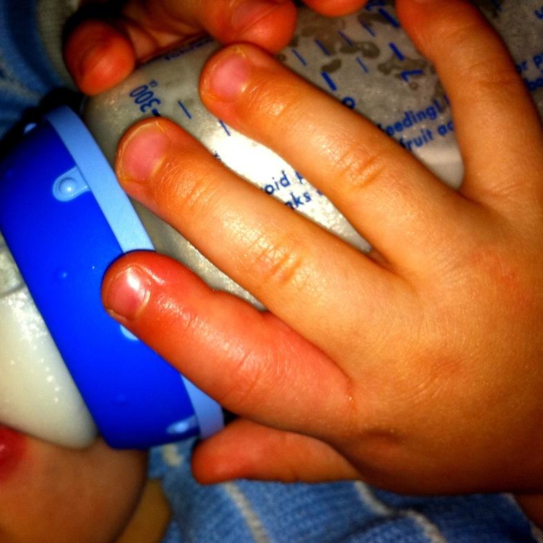 Picada de abelha em criança dedo inchado