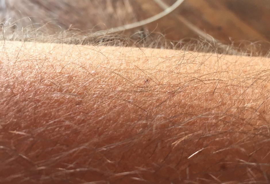 braço arrepiado