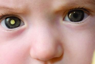 Como detectar câncer ocular em Padawans usando o smartphone